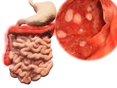 Colitis Ulcerosa Symptomeursachen Therapie Und Ernährung
